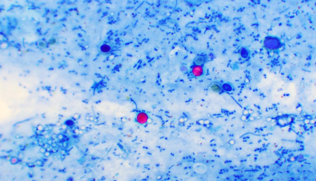 under microscope